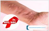 Các bệnh da liễu có liên quan tới HIV/AIDS mà bạn nên biết