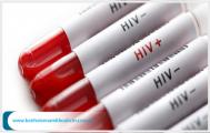 Dấu hiệu nhiễm HIV sau 3 tháng chính xác nhất