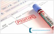 Nên xét nghiệm hiv ở đâu uy tín và chính xác nhất