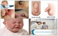 Một số hình ảnh viêm bao quy đầu ở trẻ em cha mẹ cần lưu ý