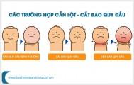 Tìm hiểu về thuốc làm giãn bao quy đầu an toàn