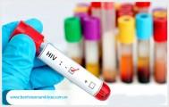 Xét nghiệm hiv ag/ab combo ở đâu?