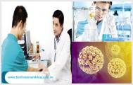 Xét nghiệm HPV ở nam giới