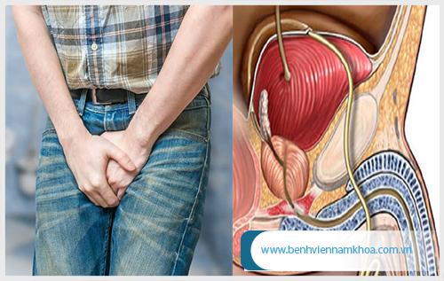 Nang tiền liệt tuyến gây nhiều ảnh hưởng xuất khỏe nam giới